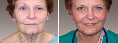 An endoscopic brow lift woman before and after front photo