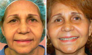 face and neck lift woman before and after front photo