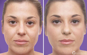 Restylane and Juvederm woman patient before and after photo