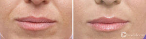 Restylane and Juvederm Gallery: Before and After Photos - female (patient 1)