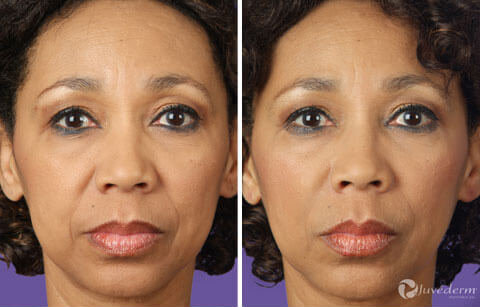 Restylane and Juvederm Gallery: Before and After Photos - female (patient 2)