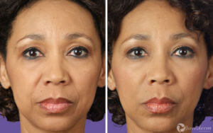 juvederm - woman before and after front photo