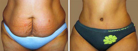 Yager Esthetics - Before and After Photos: Abdominoplasty