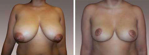 Yager Esthetics - Before and After Photos: Breast Reduction