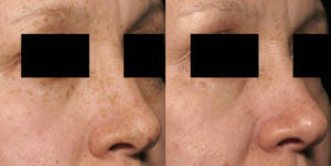 Skin rejuvenation woman patient before and after photo