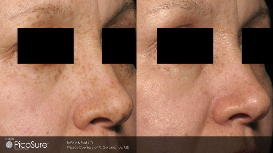 Skin Rejuvenation Gallery - Before and After Photos - female, oblique view (patient 1