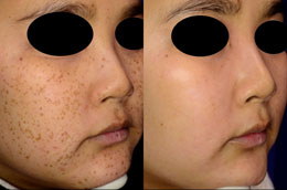 Skin rejuvenation man patient before and after photo