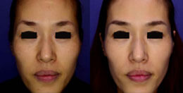 Skin rejuvenation woman patient before and after front photo