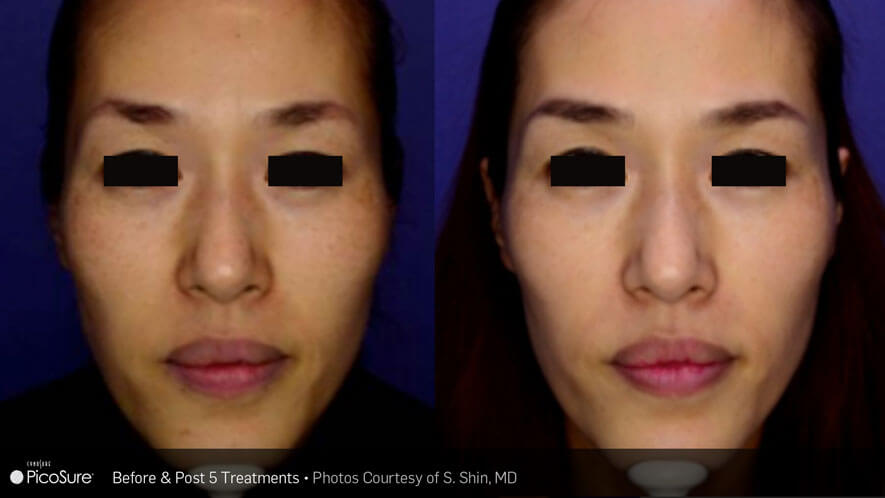 Skin Rejuvenation Gallery - Before and After Photos - female, frontal view (patient 3)