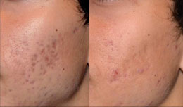 Skin rejuvenation man patient before and after left hand photo