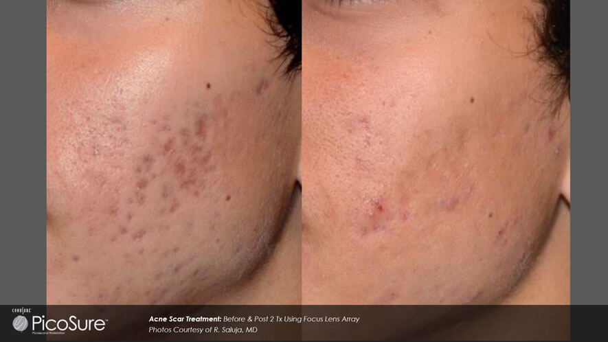 Skin Rejuvenation Gallery - Before and After Photos - female, oblique view (patient 4)