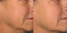 Skin rejuvenation man patient before and after right hand photo