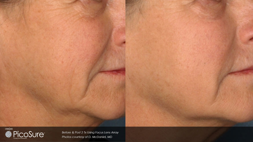 Skin Rejuvenation Gallery - Before and After Photos - female, oblique view (patient 5)