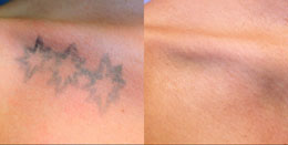 Tattoo removal patient before and after photo