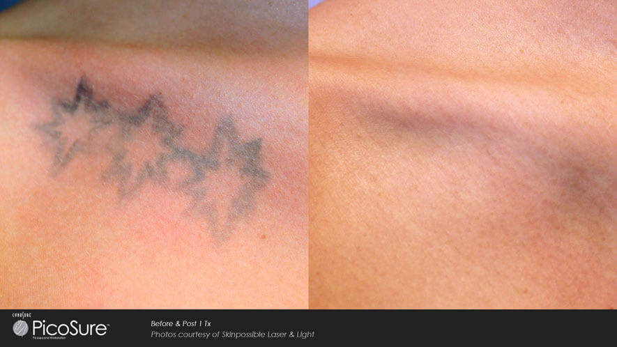 Tattoo Removal Gallery: Before and After Photos: patient 3