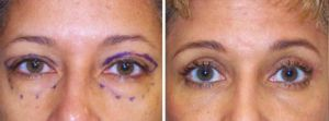 Eyelid Surgery Before and After Photos Gallery - 49 yr old woman
