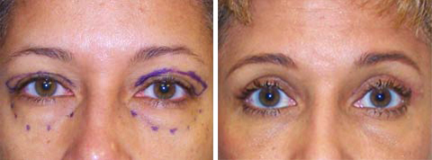 Yager Esthetics - Before and After Photos: Eyelid Surgery