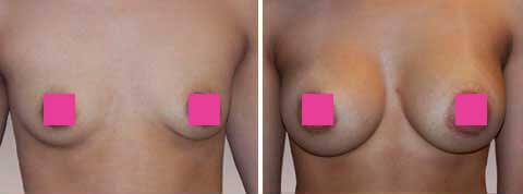 Breast Augmentation Gallery : 27 year old female, patient 4 (front view)