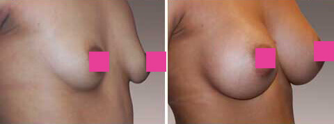 Breast Augmentation Gallery : 27 year old female, patient 4 (oblique view)
