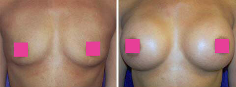 Breast Augmentation Gallery : 31 year old female, patient 6 (front view)