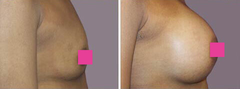 Breast Augmentation Gallery : 31 year old female, patient 6 (right side view)