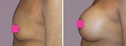 Breast Augmentation Gallery : 31 year old female, patient 6 (left side view)