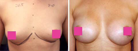Breast Augmentation Gallery : 25 year old female, patient 7 (front view)