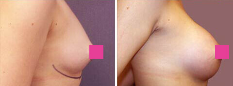 Breast Augmentation Gallery : 25 year old female, patient 7 (left side view)