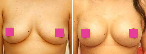 Breast Augmentation Gallery : 39 year old female, patient 8 (front view)