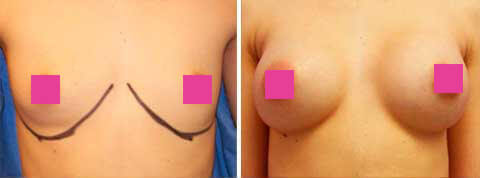 Breast Augmentation Gallery : 21 year old female, patient 9 (front view)