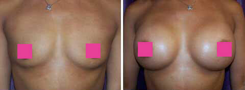 Breast Augmentation Gallery : 39 year old female, patient 10 (front view)