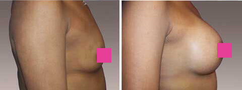 Breast Augmentation Gallery : 39 year old female, patient 10 (left side view)