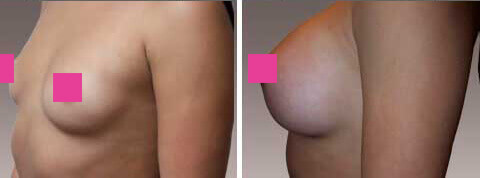 Breast Augmentation Gallery : female, patient 13 (oblique view)