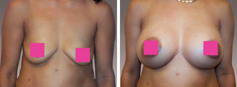 Breast Augmentation Gallery : female, patient 14 (front view)