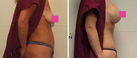 Breast Lift with Implants Gallery - female, right side view