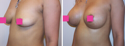 Woman's Breast, Before & After Breast Augmentation Treatment, female, patient 15 (oblique view)