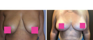 Female breast, Before and After breast lift Treatment Photos: female patient 2, front view