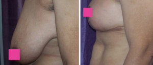Female breast, Before and After breast lift Treatment Photos: female patient 3, side view