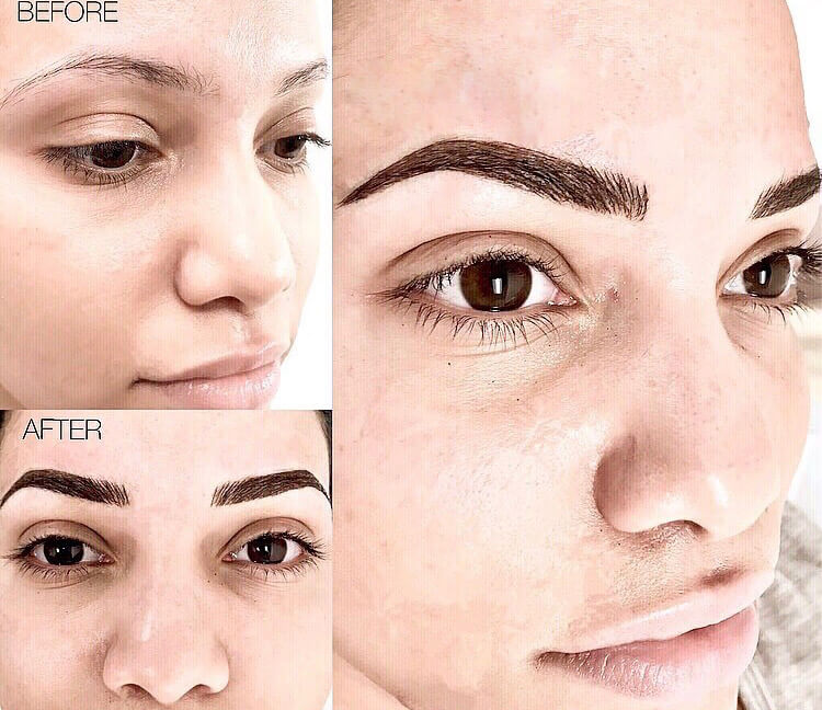 Microblading woman patient before and after photo