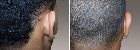 Ear Surgery Gallery: Before and After Photos - 25 year old man with prominent ears