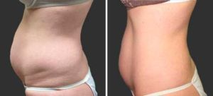 Skin Tightening Gallery - Before and After Treatment photos: female patient 1, left side view