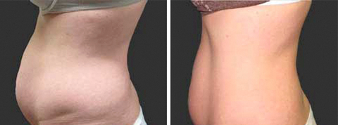 Yager Esthetics - Before and After Photos: Exilis Elite