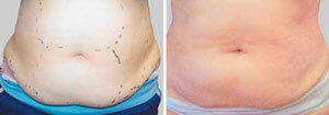 Exilis elite another man patient before and after photo