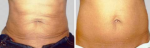 Skin Tightening Gallery - Before and After Treatment photos: female patient 5, front view