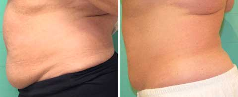 Skin Tightening Gallery - Before and After Treatment photos: female patient 6, left side view