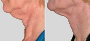 Skin Tightening Gallery - Before and After Treatment photos: female patient 8, left side view (neck)