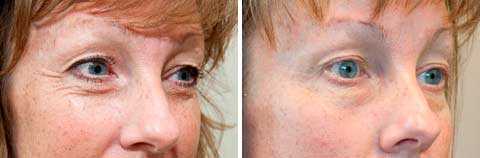 Skin Tightening Gallery - Before and After Treatment photos: female patient 9, oblique view (face)