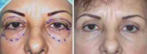 Eyelid Surgery Before and After Photos Gallery - 66 year old woman