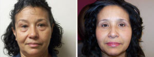 Eyelid Surgery Before and After Photos Gallery - woman