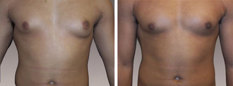 Yager Esthetics - Before and After Photos: Gynecomastia